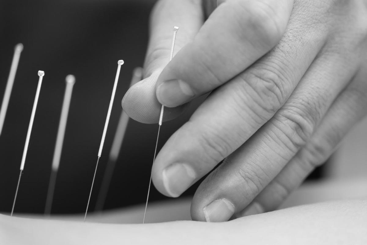 Dry needling techniek in Buitenveldert Amsterdam